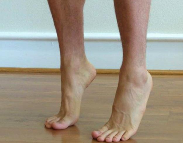 Упражнение при плоскостопие