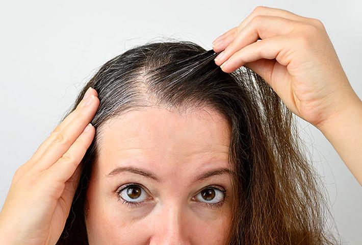 Женщина с проблемными волосами